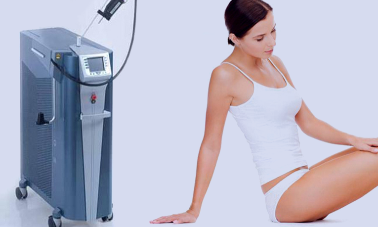 Epilation with Laser Alexandrite