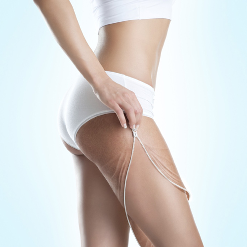 Cellulite Treatment - Slimming